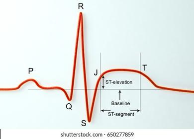 ECG in myocardial infarction. 3D illustration showing ST elevation, labeled image
