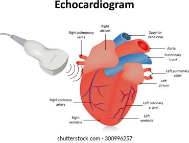 Echocardiogram (Ultrasound of the Heart)