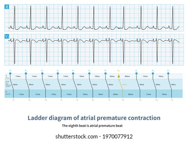Ectopic P wave appeared in advance, compensatory pause incompleteness, ECG diagnosis of atrial premature contraction.