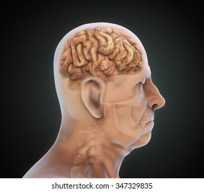 Elderly Male with Unhealthy Brain