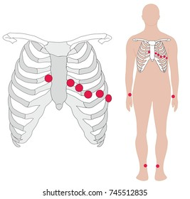 Electrocardiography, ECG or EKG, electrode placement in the body. Electrodes are placed to arms, legs and chest in intercostal space.