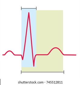 Electrocardiography, ECG or EKG, graph of a heart in normal rhythm. No text in the picture.