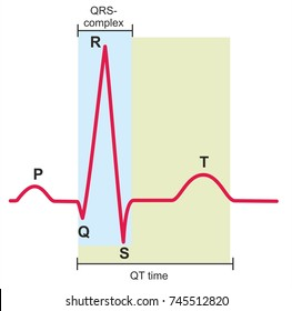 Electrocardiography, ECG or EKG, graph of a heart in normal rhythm.