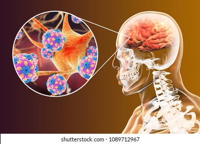 Encephalitis caused by enteroviruses, medical concept, 3D illustration showing brain infection and close-up view of neurons infected by viruses Coxsackie, Echo, Polio or other Picornaviruses