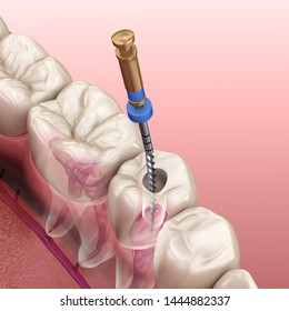 Endodontic root canal treatment process. Medically accurate tooth 3D illustration.