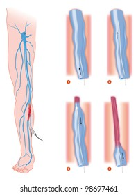 endovenous laser treatment varicose vein ablation