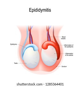 Epididymitis is inflammation of the epididymis of the testicle. Illustration of an adult human testicles. diagram for science and medical use.
