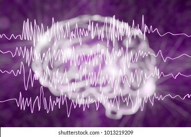 Epilepsy awareness concept. Brain and encephalography in epilepsy patient during seizure attack, 3D illustration in purple color