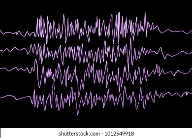 Epilepsy awareness. Electroencephalography in epilepsy patient during seizure attack, 3D illustration