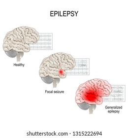 Epilepsy is a condition characterized by recurrent and unpredictable seizures. Human brain. EEG of healthy brain and epileptic seizure. primary generalized epilepsy and focal seizures.