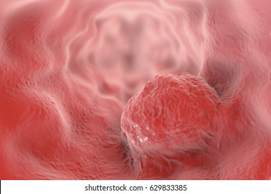 Esophageal cancer, 3D illustration showing tumor on the wall of esophagus