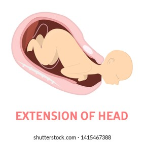 Extension of baby head in vaginal delivery. Fetus movement during the labor. Biology and gynecology. Child birth process. Isolated  illustration