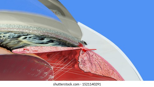 Eye anatomy. Iris, scleral spur, lens, fiber, ciliary body, trabecula, Schwalbe's line, anterior chamber. Accurate, highly detailed and realistic 3D illustration showing main parts. Blue background.