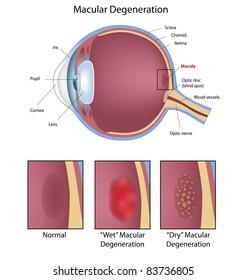 Eye condition :  macular degeneration