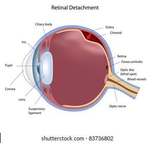 Eye condition: retinal detachment