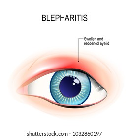 Eye of human. Blepharitis is a inflammation, and reddening of the eyelid. Human anatomy. diagram for educational, and medical use.