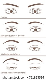 Eyelid ptosis to varying degrees