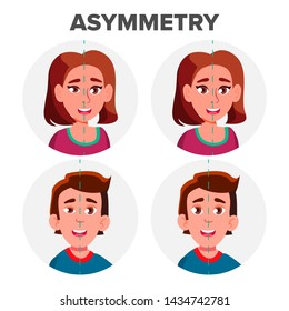 Eyes Asymmetry Of Character Man And Girl . Young Boy Male And Woman Female Ptosis Eyelid Asymmetry. Before And After Operating Plastic Correction Surgery Flat Cartoon Illustration