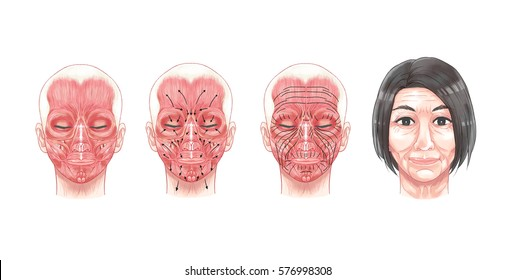 Face Facial Anatomy for botulinum toxin injection