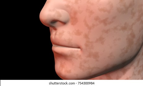Face skin age spots dark surface color. 3d rendering