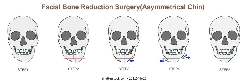 Facial Bone Reduction Surgery(Asymmetrical Chin)