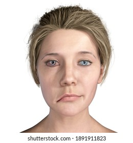 Facial nerve paralysis, Bell's palsy, 3D illustration showing female with one-sided facial nerve paralysis