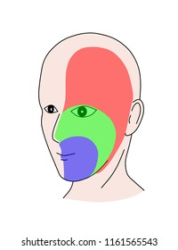 The facial sensation distributed by fifth cranial nerve nucleus in brain stem. The onion distribution pattern is typical for brain stems disease or lesion. Numbness is the most presentation.