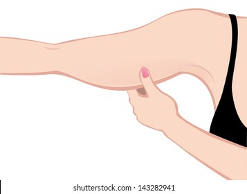 Fat arm, illustration on the white background.