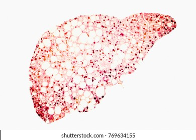 Fatty liver conceptual image, 3D illustration showing fatty liver silhouette made from micrograph of liver steatosis