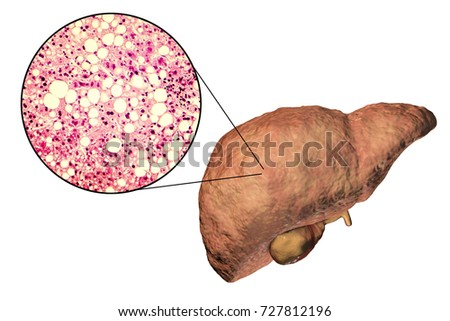 fatty liver liver steatosis 3 d illustrationのイラスト素材 727812196