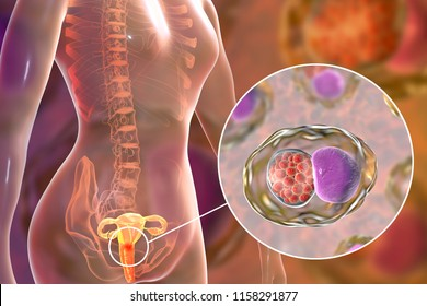 Female chlamydiosis, medical concept. 3D illustration showing close-up view of Chlamydia trachomatis bacteria infecting cells of cervix uteri