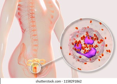 Female gonorrhea, medical concept. 3D illustration showing close-up view of Neisseria gonorrhoeae bacteria inside neutrophils with incomplete phagocytosis found in smear from cervix uteri