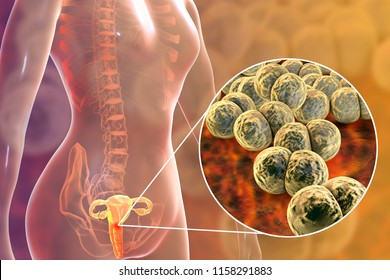 Female gonorrhea, medical concept. 3D illustration showing close-up view of Neisseria gonorrhoeae bacteria infecting cervix uteri