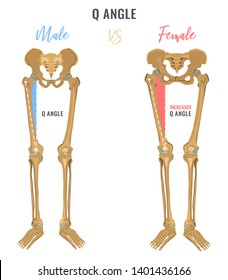Female and male skeleton differences poster. Q angle in comparison. Major gender nuances. Beautiful illustration on a white background.