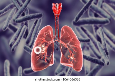 Fibrous-cavernous pulmonary tuberculosis, 3D illustration showing tuberculosis cavity in the lung