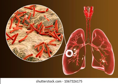 Fibrous-cavernous pulmonary tuberculosis and close-up view of Mycobacterium tuberculosis bacteria, 3D illustration showing cavity in the lung