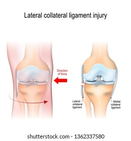 Fibular collateral ligament injury. joint anatomy. illustration for biological, medical, science and educational use