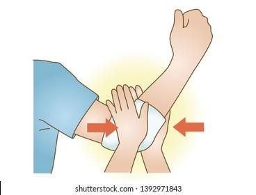 First aid Arm injury hemostasis medical illustration