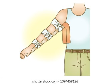 First aid injury fracture  arm  splint  fixing bandaging illustration