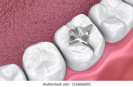 Fissure dental fillings, Medically accurate 3D illustration