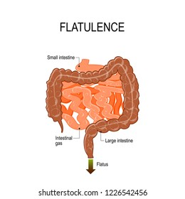 Flatulence is passing gas from the digestive system out of the back passage. air collects in the digestive system. Small and Large intestine with intestinal gas. human anatomy