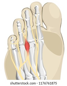 Foot Nerves inflammation, Morton Neuroma