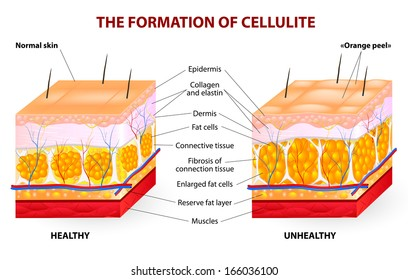 The formation of cellulite.  Cellulite occurs in most females and rarely in males. diagram.