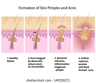 Formation of skin acnes and pimples