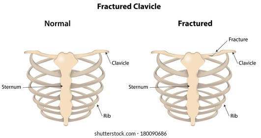 Fractured Clavicle Labeled Diagram Stock Vector Royalty Free