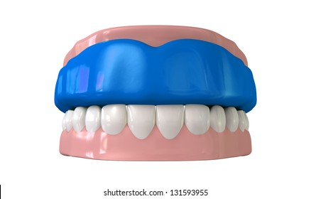 A front view of a regular blue sports gum guard fitted to a set of closed false teeth on an isolated background