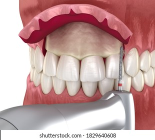 Lengthen Images Stock Photos Vectors Shutterstock 04 crown lengthening, or, gingivectomy. https www shutterstock com image illustration frontal crown lengthening esthetic surgery medically 1829640608