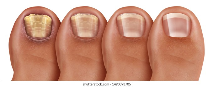 Fungal nail infection recovery diagram of a treatment as an infected foot toenail or toe nail with damaged unhealthy and healthy human anatomy in a 3D illustration style.