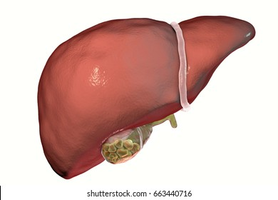Gallstones, 3D illustration showing front view of liver and gallbladder with stones