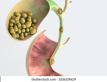 Gallstones in gallbladder and bile duct - 3D rendering